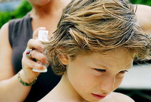Uši i gnjide u kosi. Kako ih se riješiti na prirodan način